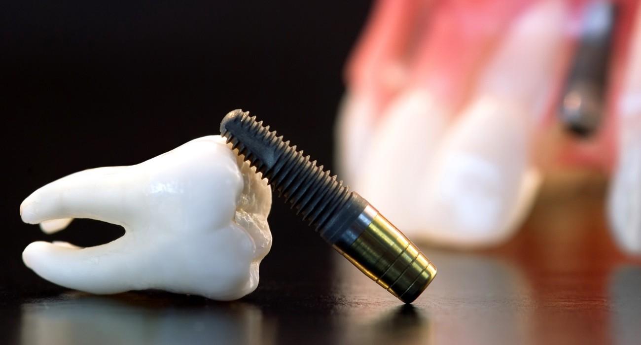Установка имплантатов